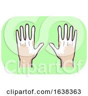 Poster, Art Print Of Hands Symptom Loss Of Pigment In Skin Illustration