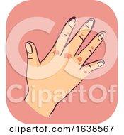 Poster, Art Print Of Hand Symptoms Scarred Illustration