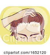Man Symptom Scalp Scaly Patches Illustration