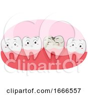 Teeth Mascot Tooth Decay Illustration