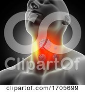 3D Male Medical Figure With Sore Throat And Corona Virus Cells