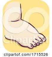 Feet Swelling Illustration