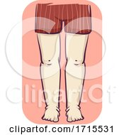 Girl Leg Swelling Illustration