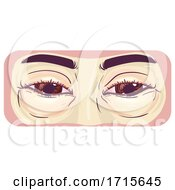 Symptom Swollen Eyes Illustration