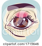Symptom Eyes Chalazion Illustration