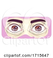 Symptom Bulging Eyes Illustration