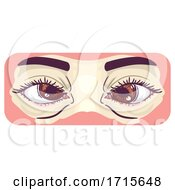 Symptom Cross Eyes Illustration