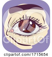 Symptom Eyes Bump Illustration