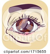 Symptom Eye Stye Illustration