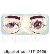 Symptom Lazy Eye Illustration