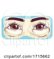 Symptom Puffy Baggy Eyes Illustration