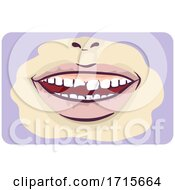 Symptoms Chipped Tooth Illustration