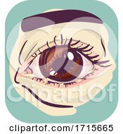 Symptoms Crusty Eye Illustration