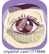 Symptoms Dark Under Eye Circle Illustration