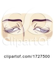 Eye Muscles Weakness Control Illustration