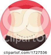 Cesarean Section Surgery Stitches Illustration
