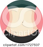 Appendectomy Surgery Stitches Illustration