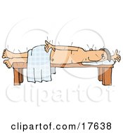 Male Caucasian Patient Poked All Over With Acupuncture Needles Lying On His Side On A Table While Draped In A Sheet