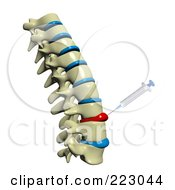 Royalty Free RF Clipart Illustration Of A 3d Spine With Deformed Spinal Discs And A Needle Injecting Medicine Into The Tissue